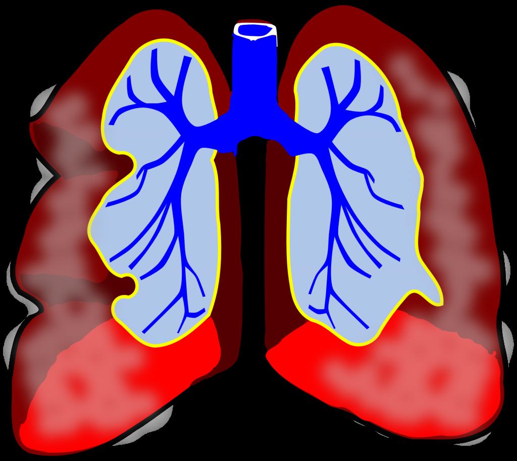 Lunge Schleim